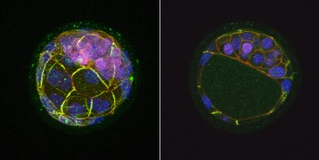 Mouse blastocyst displaying expression of the Nanog genes